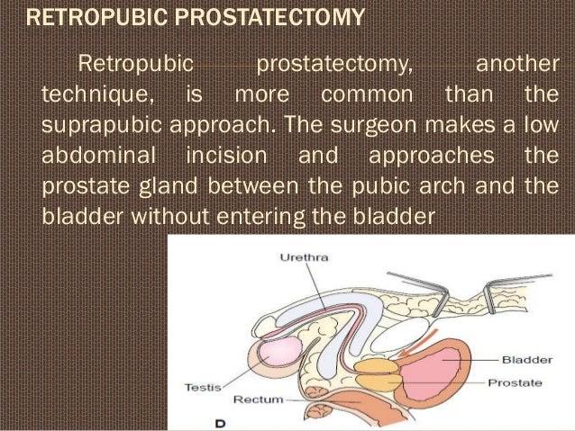 Benign Prostate Hypertrophy for nursing students