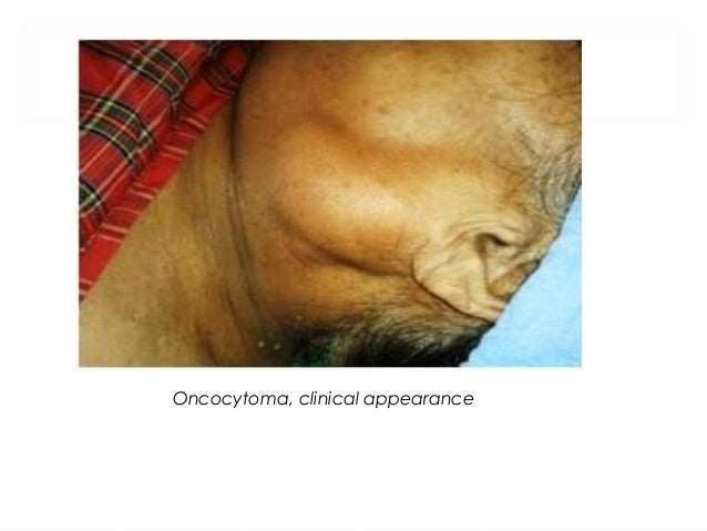 BASAL CELL ADENOMA • It is an uncommon salivary gland tumour, histopathologically composed of basaloid (resembling basal c...