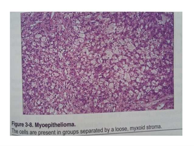 Benign tumours of salivary glands