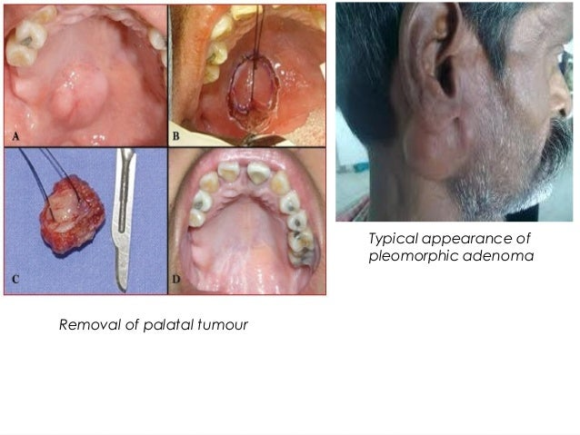 Typical appearance of pleomorphic adenoma Removal of palatal tumour