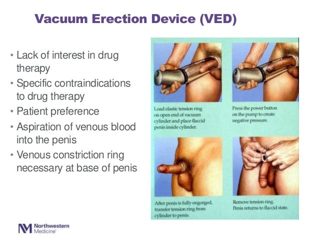 vacuum device for erectile dysfunction