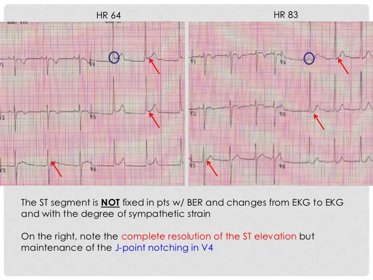 HR 64                                   HR 83The ST segment is NOT fixed in pts w/ BER and changes from EKG to EKGand with...