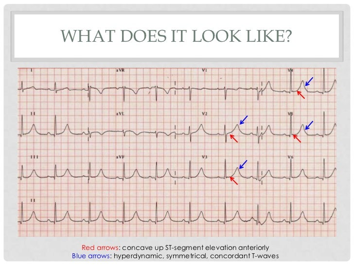 WHAT DOES IT LOOK LIKE?    Red arrows: concave up ST-segment elevation anteriorly Blue arrows: hyperdynamic, symmetrical, ...