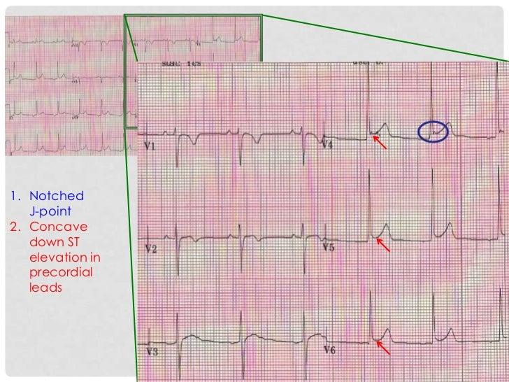 1. Notched   J-point2. Concave   down ST   elevation in   precordial   leads