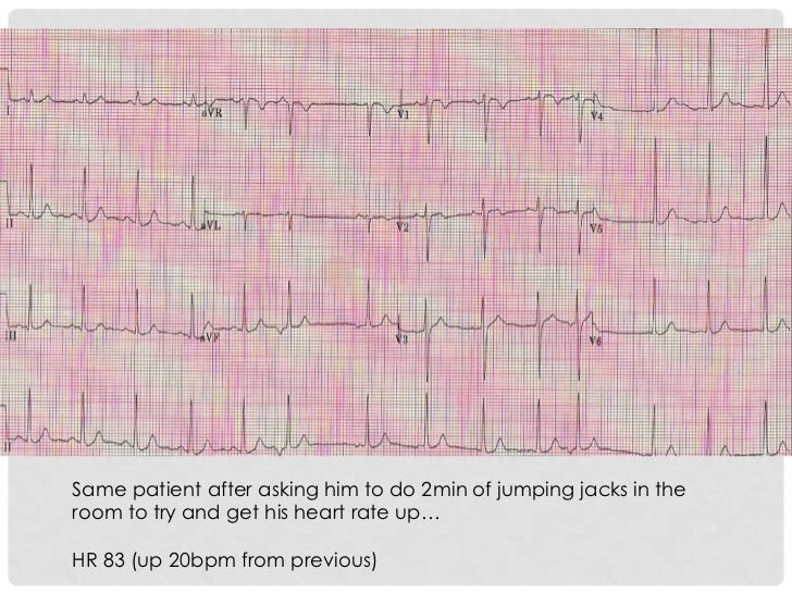 Same patient after asking him to do 2min of jumping jacks in theroom to try and get his heart rate up…HR 83 (up 20bpm from...