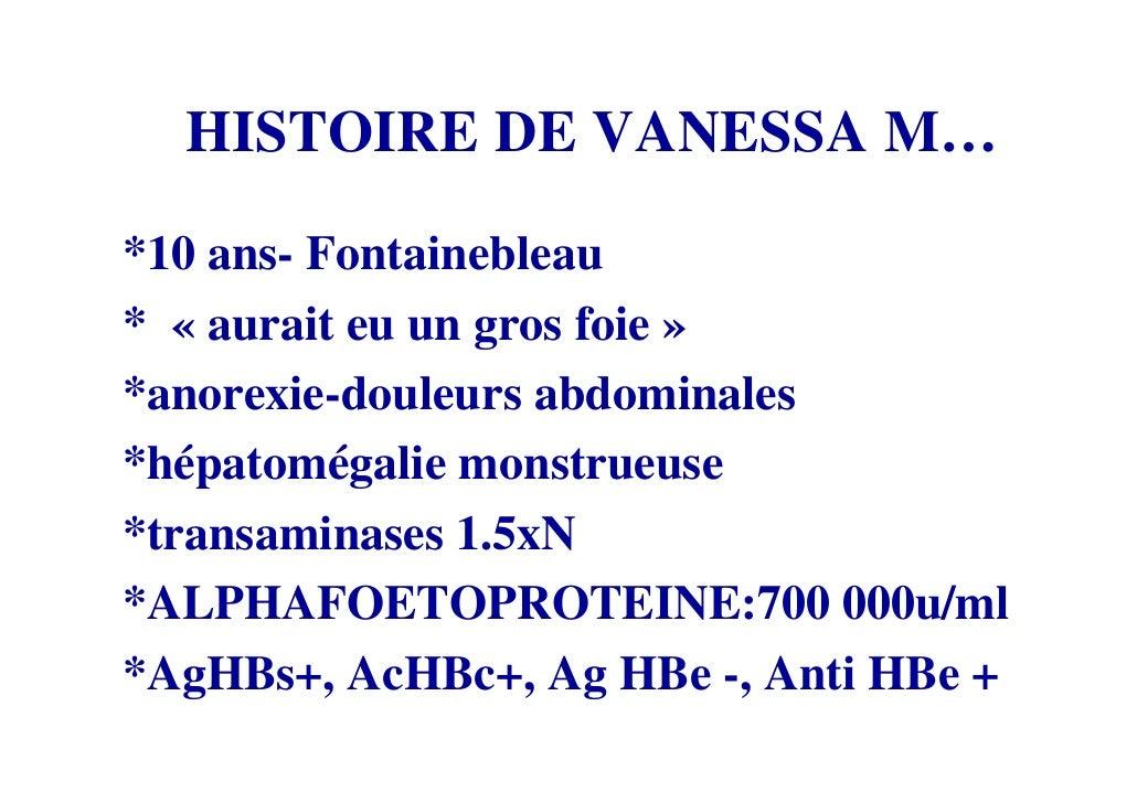 HISTOIRE DE VANESSA M… *10 ans- Fontainebleau * « aurait eu un gros foie » *anorexie-douleurs abdominales *hépatomégalie m...