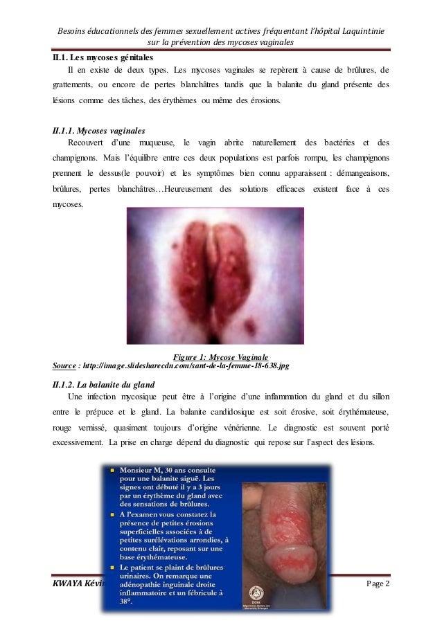 mycose genital femme
