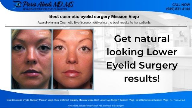 Best cosmetic eyelid surgery Mission Viejo