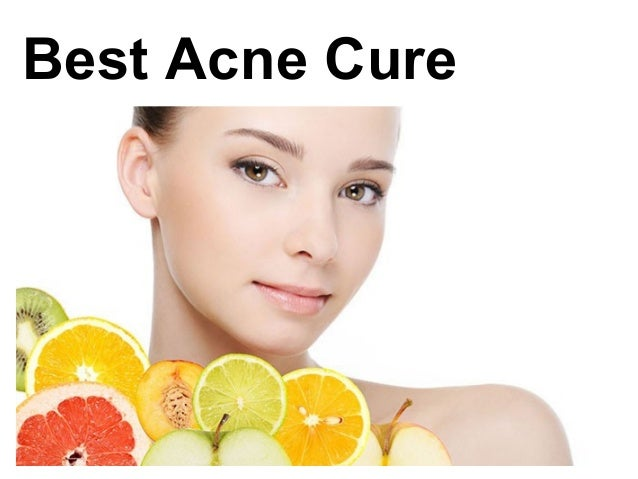 How To Cure Severe Acne Naturally