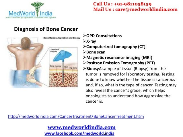 Best Cancer Hospitals of India for Advanced Bone Cancer ...