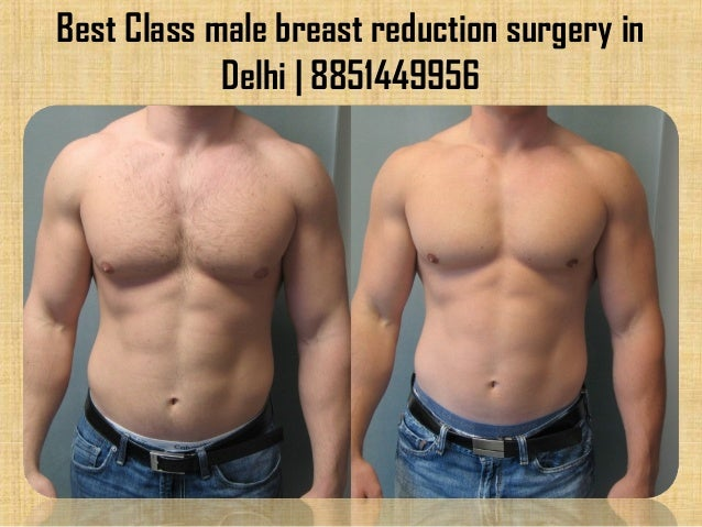 Best Class Male Breast Reduction Surgery In Delhi 8851449956