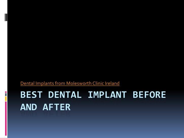 Dental Implants from Molesworth Clinic IrelandBEST DENTAL IMPLANT BEFOREAND AFTER