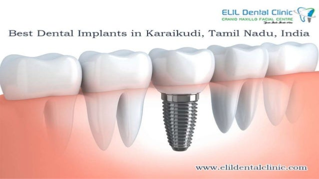 Elil Dental Clinic is the best dental hospital in Karaikudi to provide best dental implant services where artificial teeth...