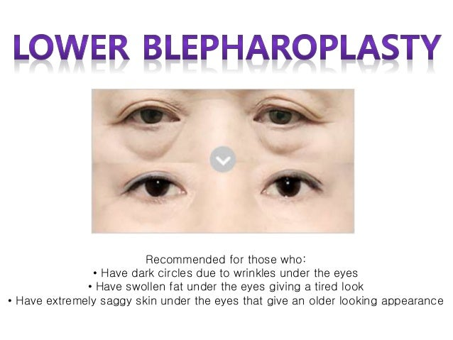 Best Eye Plastic Surgery In Korea For Middle Age