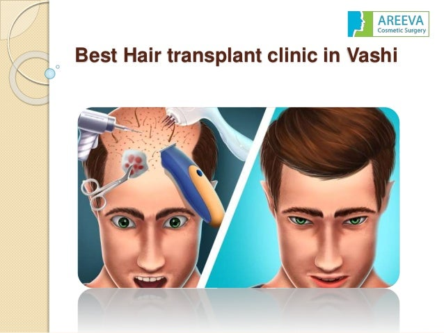 Best hair transplant clinic in vashi