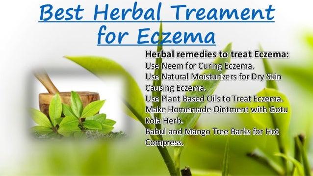 best herbal treament for eczema