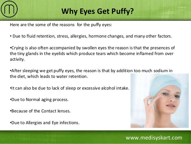 Home Remedy For Puffy Eyes Due To Allergies