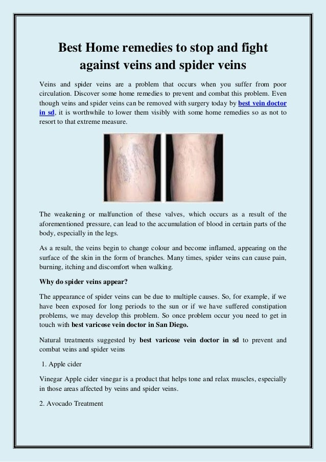 how to treat spider veins at home