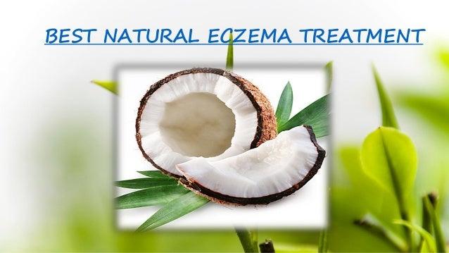 best natural eczema treatment