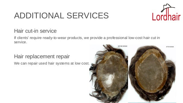 Best Non Surgical Hair Replacement Systems Hair Toupees