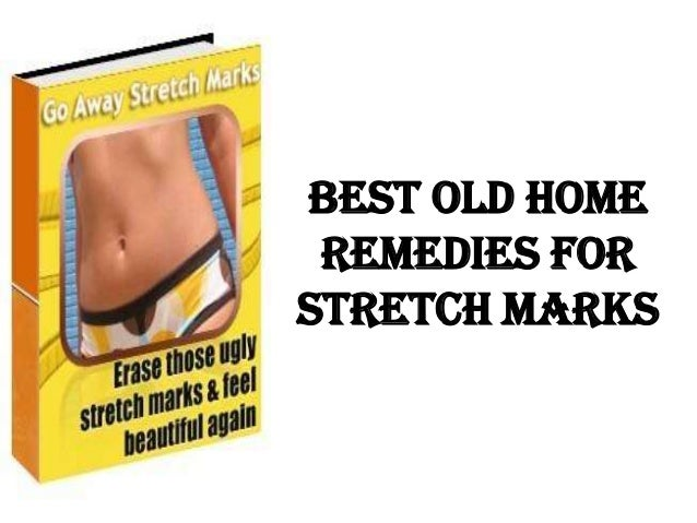 Best Old Home Remedies ForStretch Marks