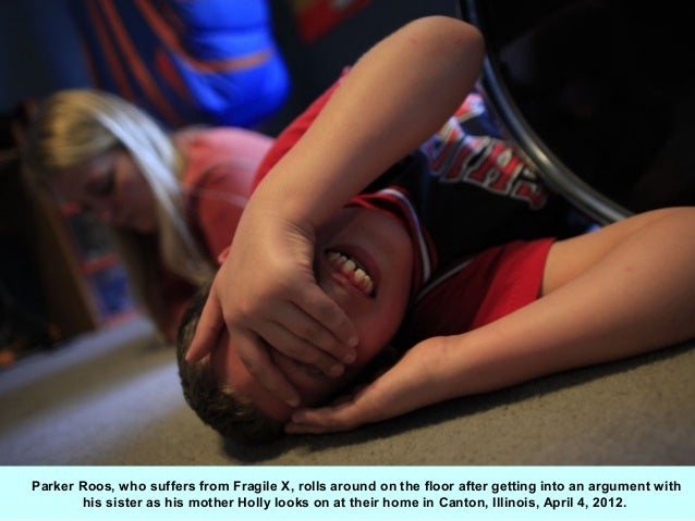 Parker Roos, who suffers from Fragile X, rolls around on the floor after getting into an argument with       his sister as...