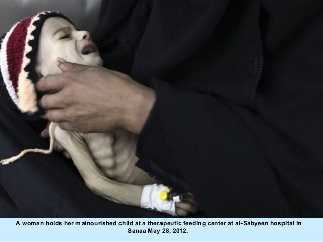 A woman holds her malnourished child at a therapeutic feeding center at al-Sabyeen hospital in                            ...