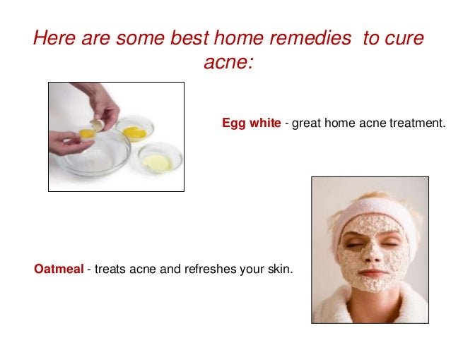 how to clear acne fast home remedies