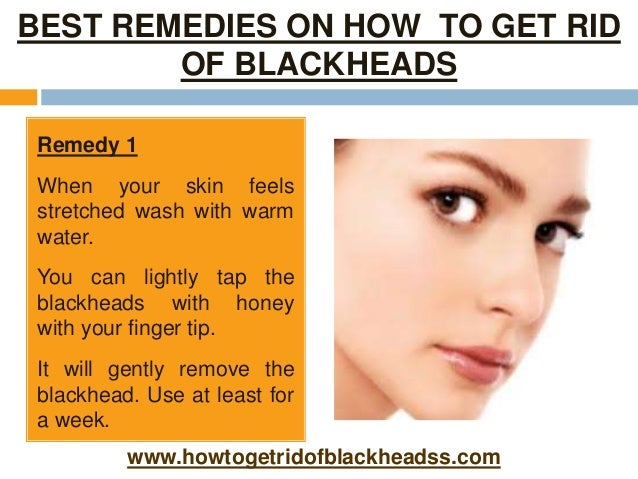 Best Natural Remedy For Blackheads