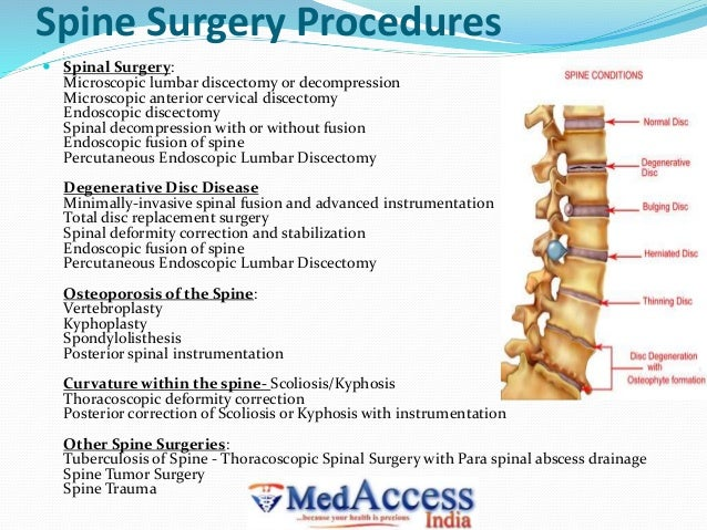 Best spine surgery hospital in india.