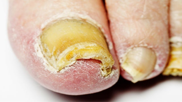 Cure Toenail Fungus Fast - What is The Best Toenail Fungus Treatment?