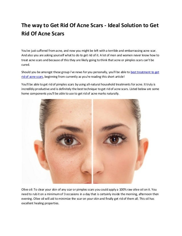 Best Way To Get Rid Of Acne Scars Fast