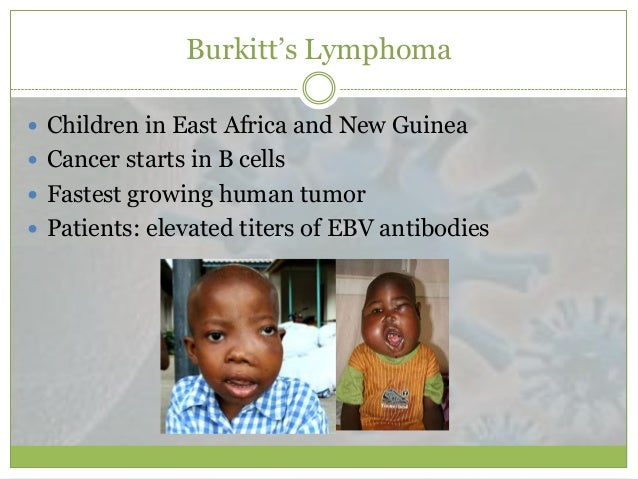 burkitt lymphoma essay Burkitt's lymphoma is associated with infection by the epstein-barr virus (ebv), which is a dna virus rather than an rna virus like the ones we have been discussing most people infected with ebv do not develop lymphoma, indicating that other factors in addition to ebv are required.
