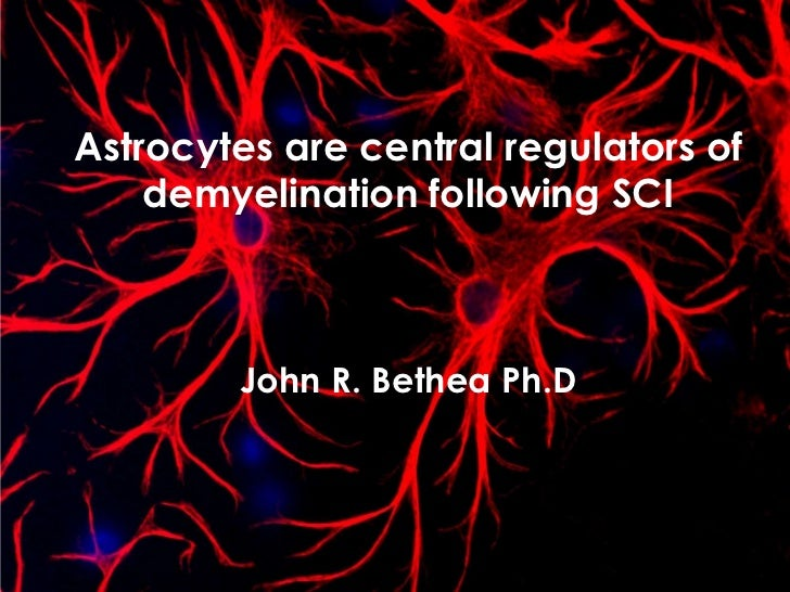Astrocytes are central regulators of demyelination following SCIJohn R. BetheaPh.D<br />