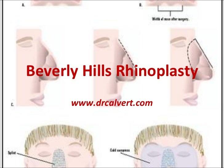 Beverly Hills Rhinoplasty www.drcalvert.com