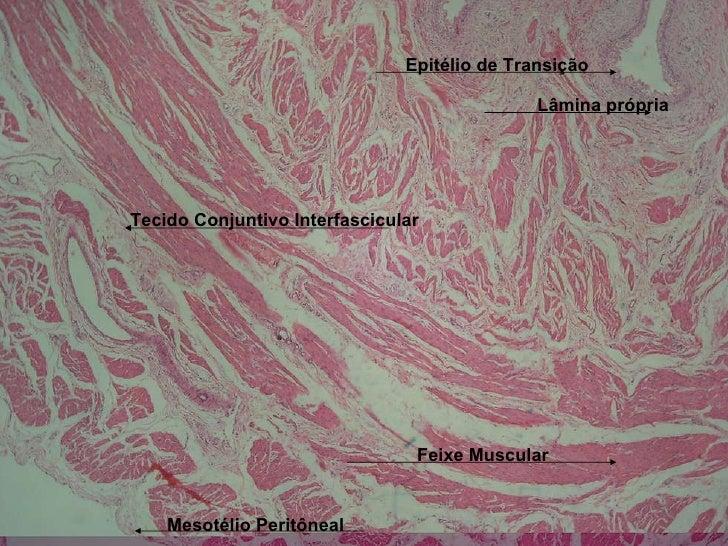 Epitélio de Transição Lâmina própria Feixe Muscular Tecido Conjuntivo Interfascicular Mesotélio Peritôneal