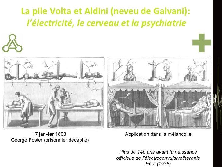 La pile Volta et Aldini (neveu de Galvani):  l'électricité, le cerveau et la psychiatrie 17 janvier 1803  George Foster (p...