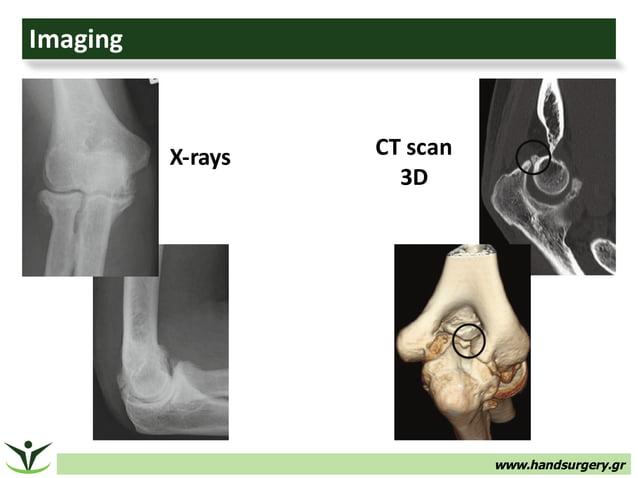 www.handsurgery.gr Imaging X-rays CTscan 3D