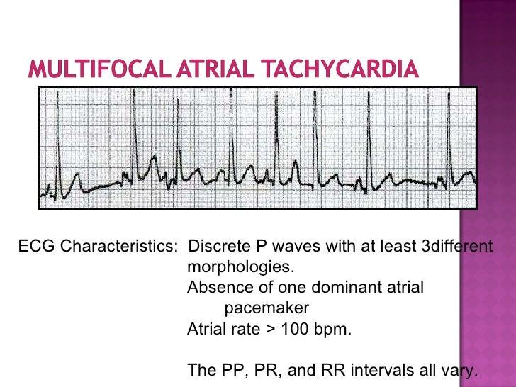 ECG: Multifocal Atrial...