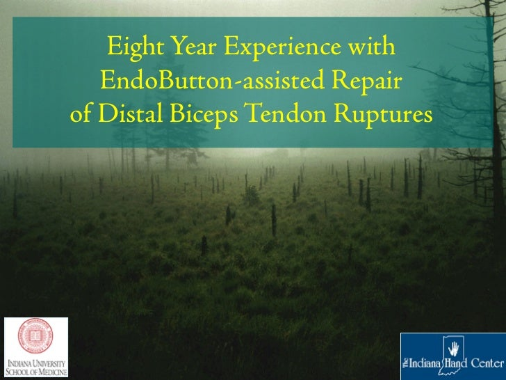 Eight Year Experience with   EndoButton-assisted Repairof Distal Biceps Tendon Ruptures