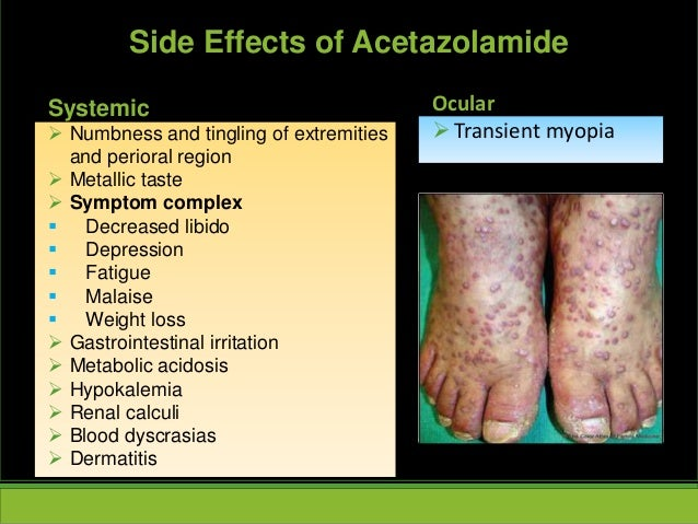 Systemic  Numbness and tingling of extremities and perioral region  Metallic taste  Symptom complex  Decreased libido ...