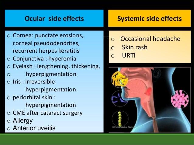 Trihexyphenidyl Ocular Side Effects