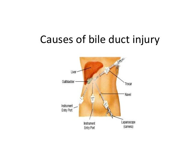 Intrahepatic bile duct injuries • During dissection of gallbladder off the liver bed. • Right hepatic duct more commonly i...