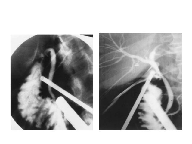 • Always dissect to the right of the line joining the right free margin of lesser omentum to cystic node. • Vessels pulsat...