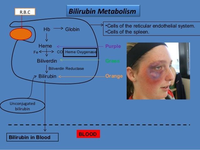 bilirubin-6-638?cb=1382351159, Skeleton