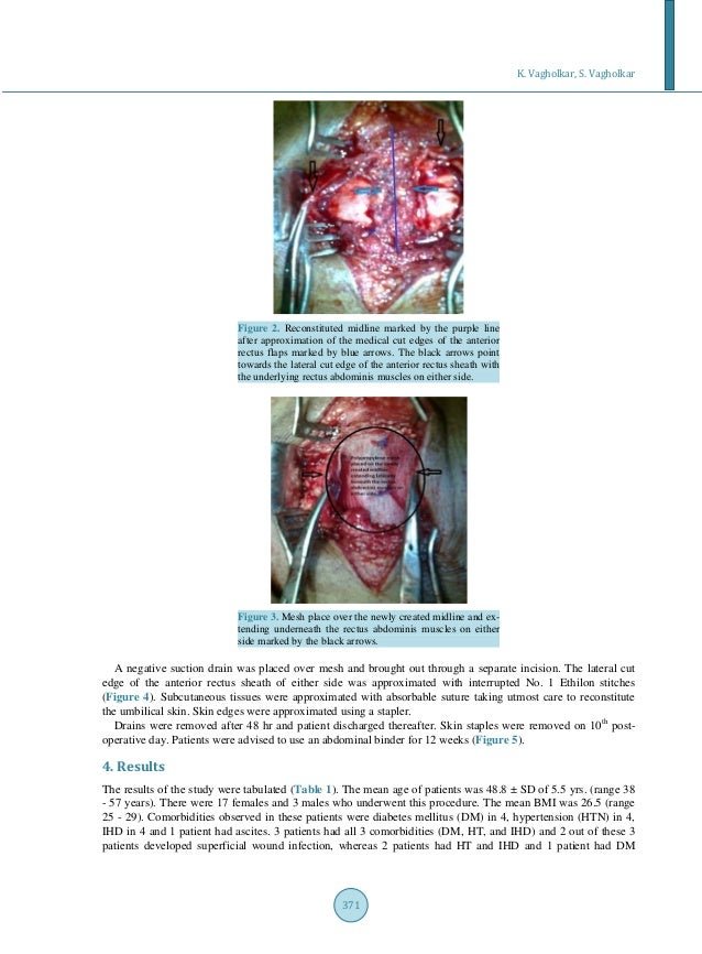 Novel Technique Combining Tissue and Mesh Repair for Umbilical Herni…