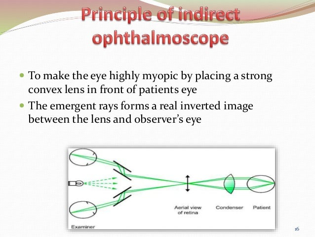 HOW TO USE BINOCULAR INDIRECT OPHTHALMOSCOPE VIEW