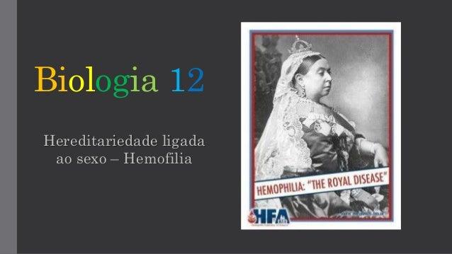 Biologia 12 Hereditariedade ligada ao sexo – Hemofilia