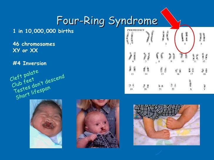 A Novel Sex Chromosome Mosaicism 45X45Y46XY46YY47