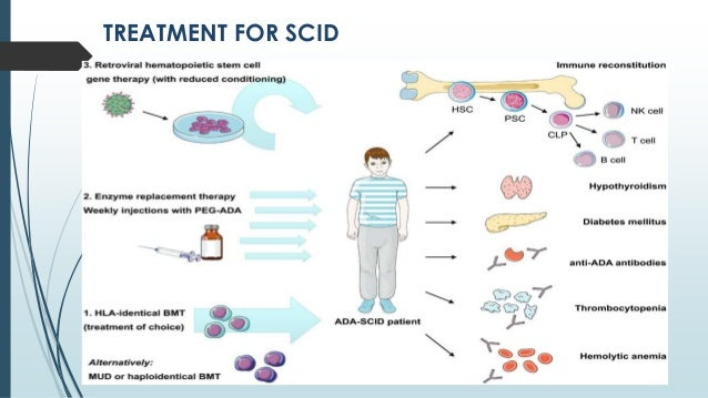 signs of scid Severe combined immunodeficiency, scid the signs and symptoms of immunodeficiency in scid can vary, but do include: history of severe and/or recurrent.